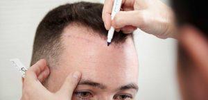 کاشت مو | جدیدترین روش کاشت مو | کلینیک کاشت موی طبیعی | دکتر کاشت مو